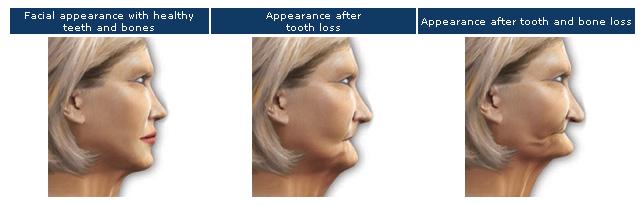 Facial appearance